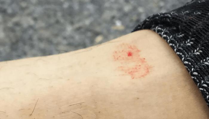ヤマビル 噛まれた 傷 血