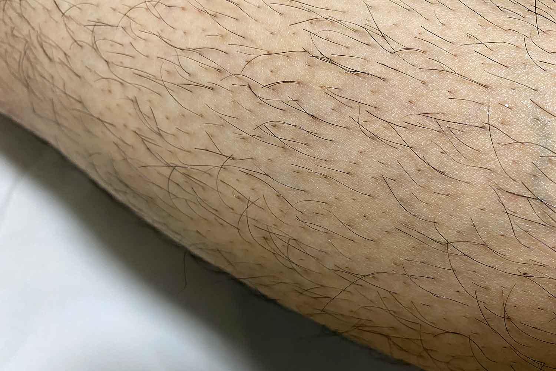ER-GK20 スネ毛を剃る前の写真